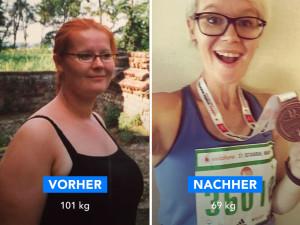 Bauchstraffung nach erfolgreichem Gewichtsverlust mit der Results App