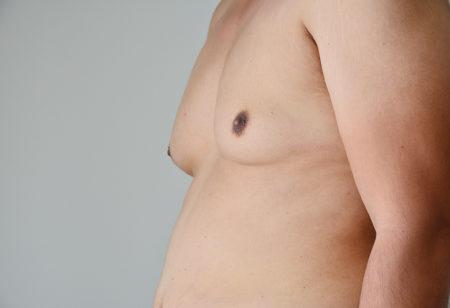 A close up of man boobs