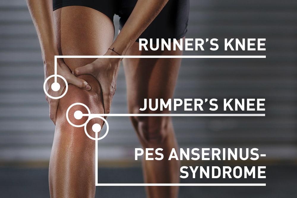 Knee pain location graphic