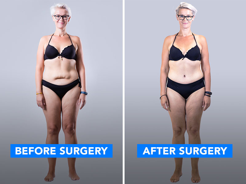 Before and after picture of a woman after her skin removal surgery.