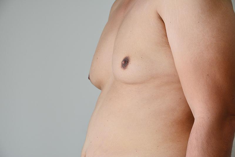 Alimentos para quemar grasa pectoral