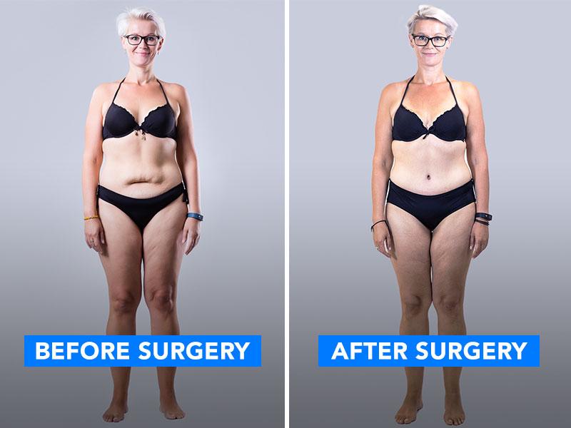 Manja avant et après l'opération