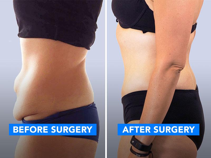 Avant et après l'opération