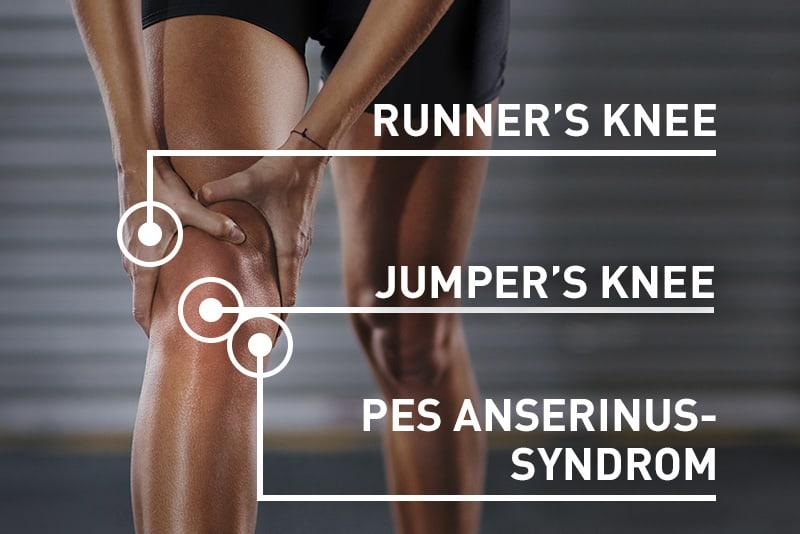 Kniescheibe neben knieschmerzen innen Knieschmerzen: Symptome